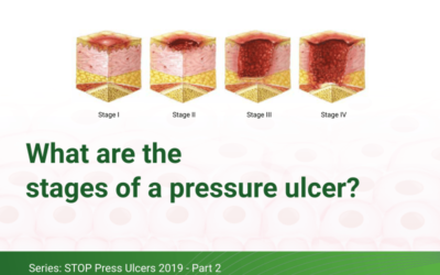 What are the stages of a pressure ulcer?