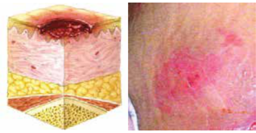 Stage II Pressure Ulcer - Partial Thickness Skin Loss