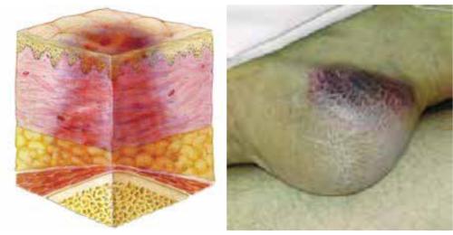 Suspected Deep Tissue Injury: Depth Unknown
